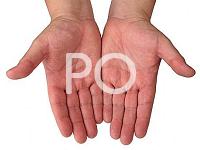 Příčiny pocení rukou